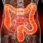 Что мы должны знать о раке толстой кишки?