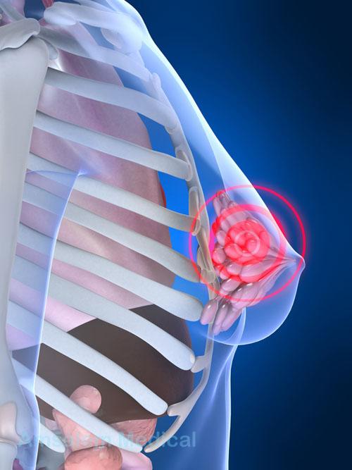 Рак молочной железы. Факторы риска