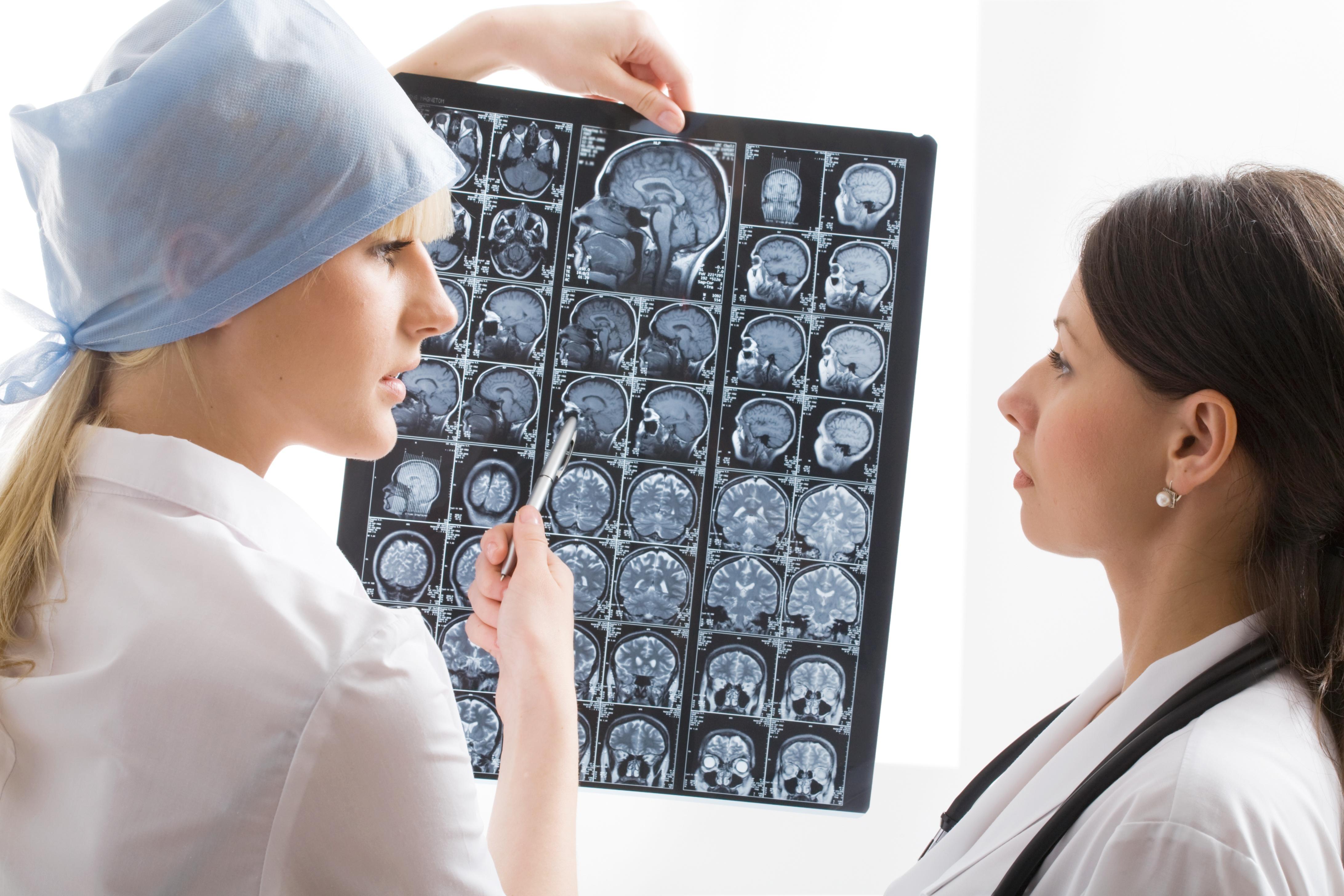 формы детской эпилепсии