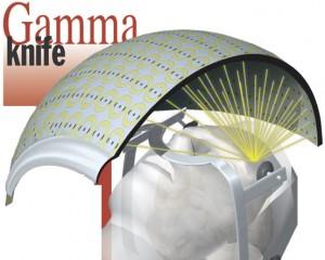 gamma_knife