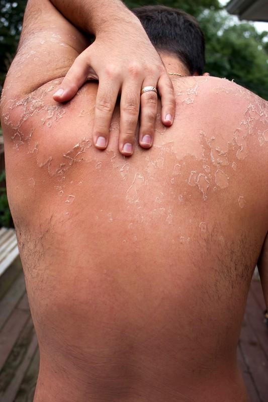 Опухоли кожи.  Диагностика