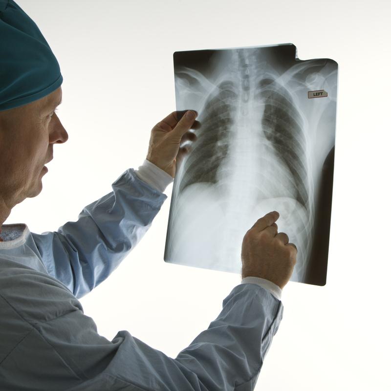 рентген легких. диагностика рака легких