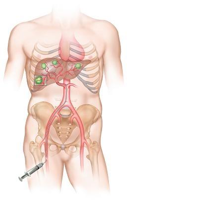 SIRT позволяет в настоящее время эффективно лечить рак печени