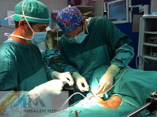 Лечение рака желудка в Израиле - Лечение за рубежом