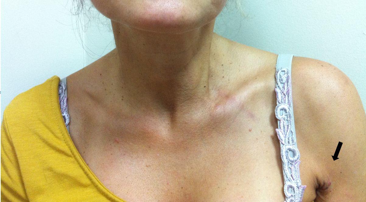 пациентка после робот операции на щитовидной железе