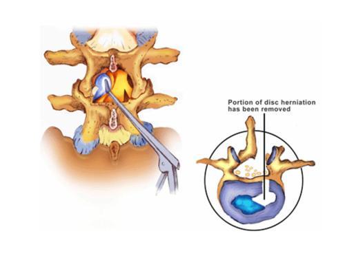 Микродискэктомия