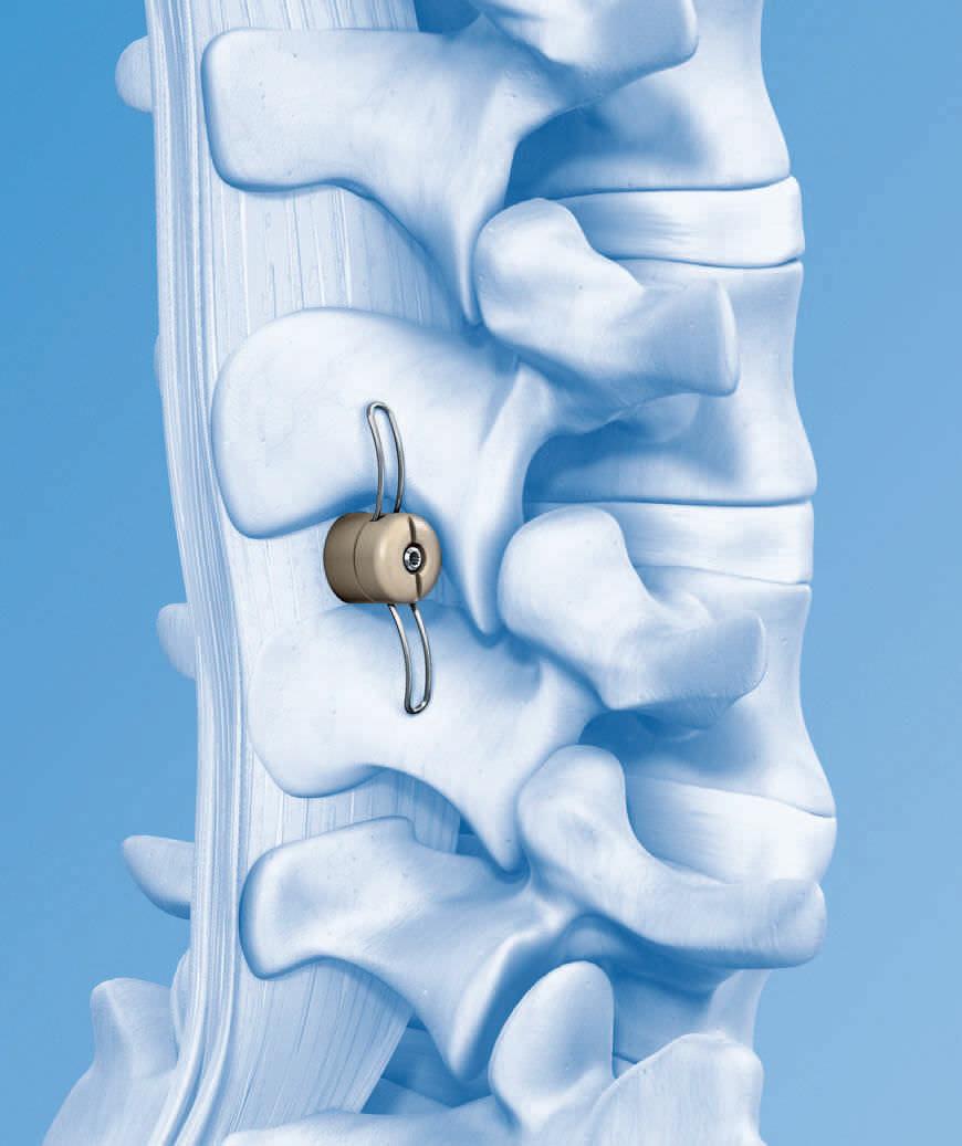 самораздвигающиеся межтеловые имплантаты