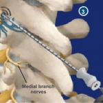 малоинвазивная хирургия позвоночника