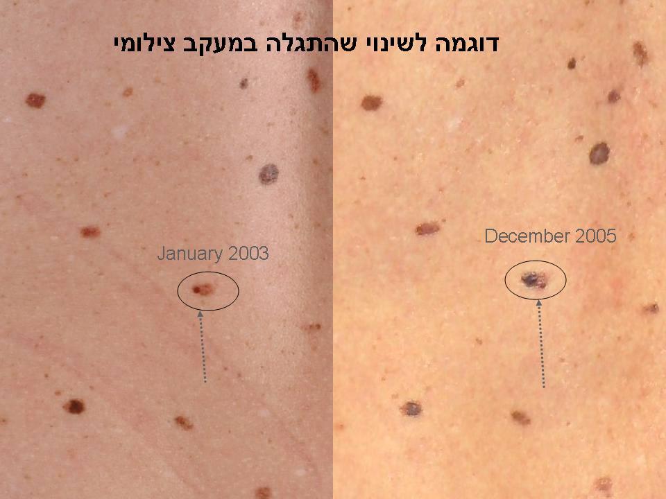 рак кожи картография