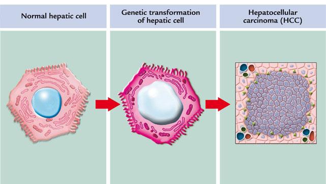 Hepatocellular-carcinoma-cancer