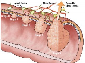 colon-cancer-diagram