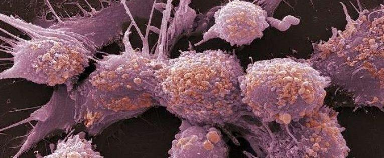 виды рака костей