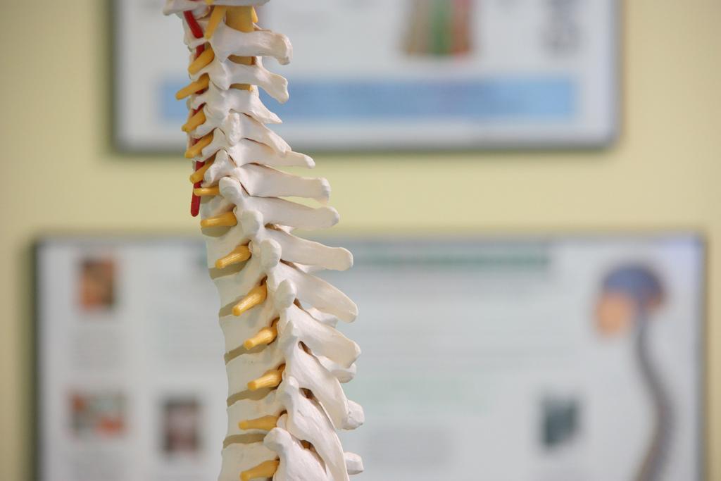 лечение синдрома фиксированного спинного мозга за границей